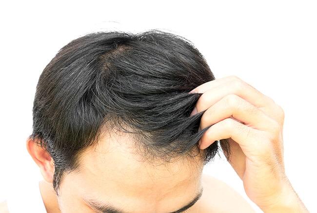 26_Presajanje-las-Hair-micrografts